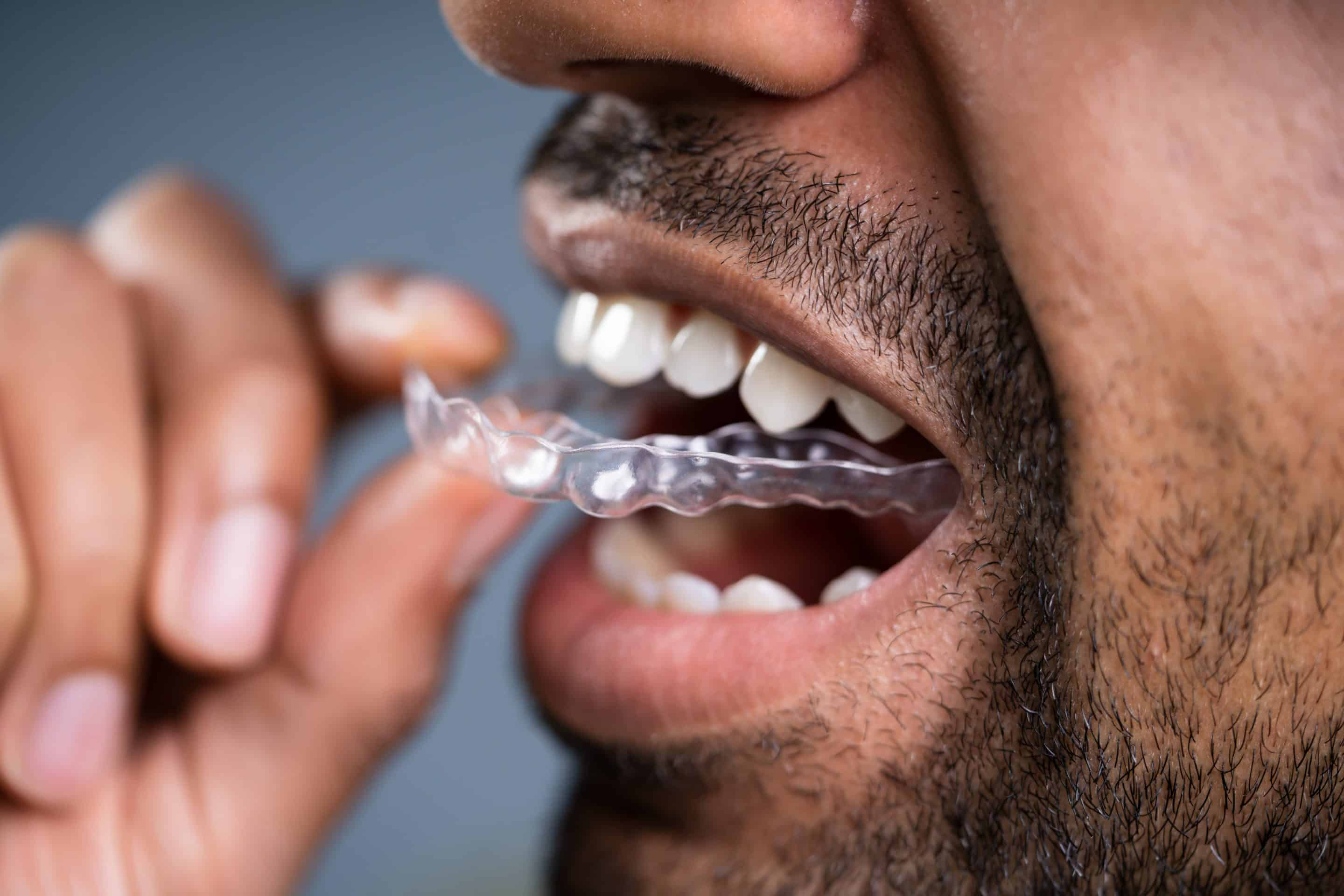Invisible Aligners in Salem NH